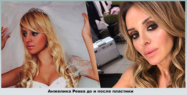Анжелика Ревва на свадьбе и сейчас