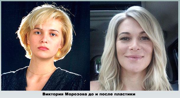Виктория Макарская изменила форму губ