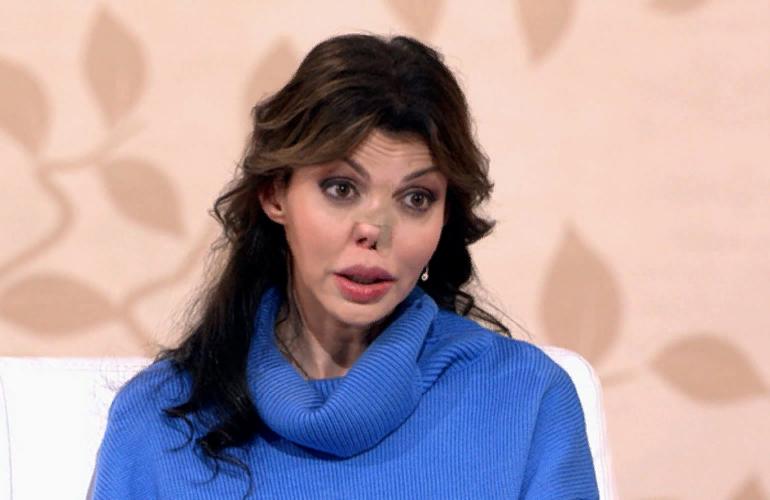 Без лица: Алиса Аршавина полностью лишилась носа